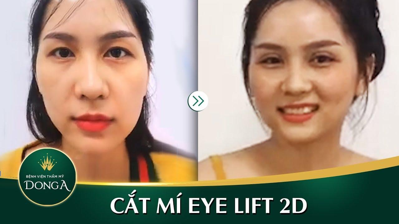 Cắt mí mắt Eye Lift 2D sau 10 ngày tại Đông Á
