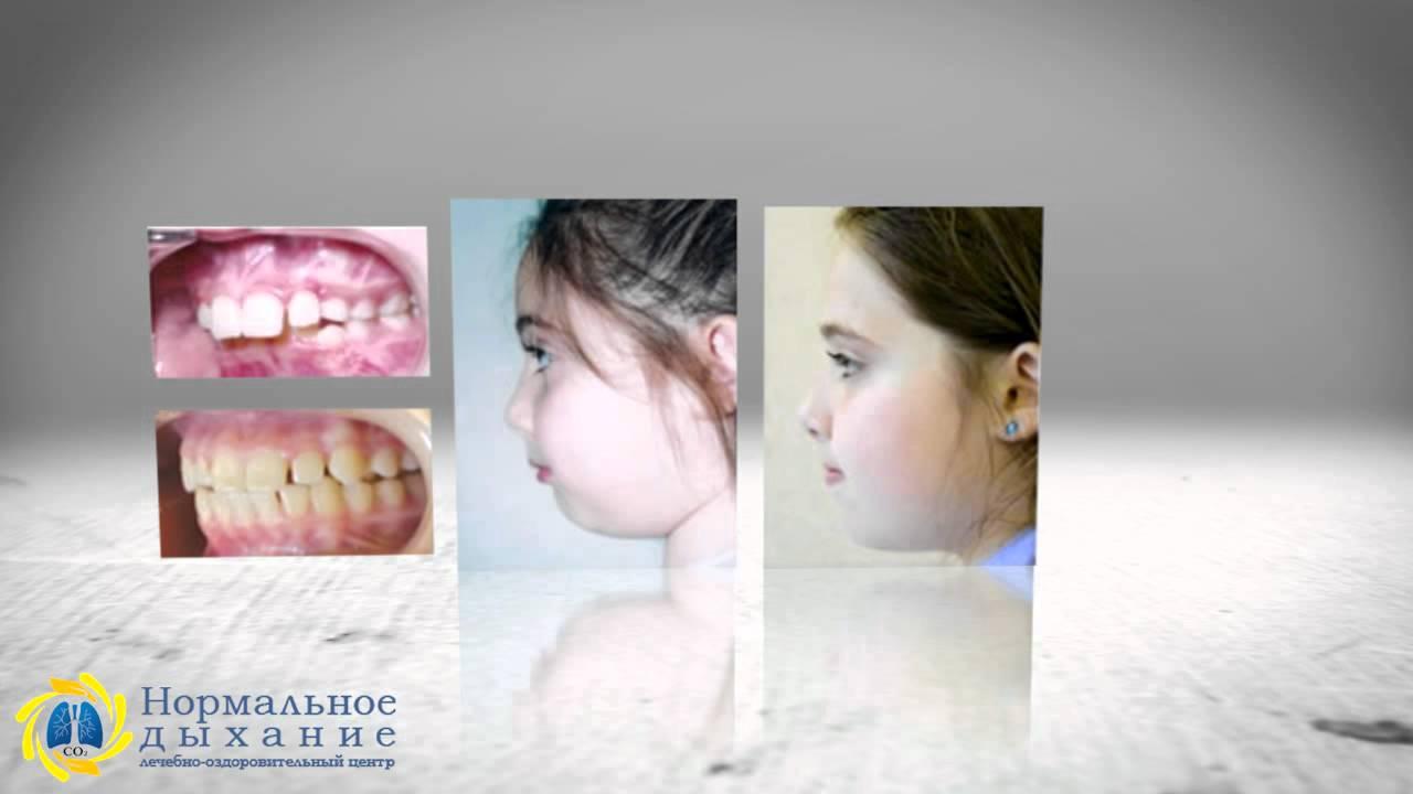 Ортодонтические трейнеры - отличная замена брекетам! - YouTube
