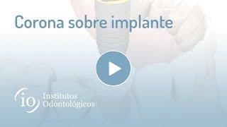 Gambar cover Corona sobre implante