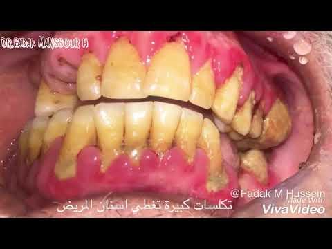 ازالة التكلسات في عيادات كلية الرافدين طب الاسنان