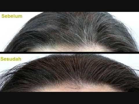 Image result for सफ़ेद बालों को काला करने