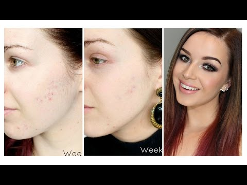 hqdefault - Microdermabrasion For Acne Scarring