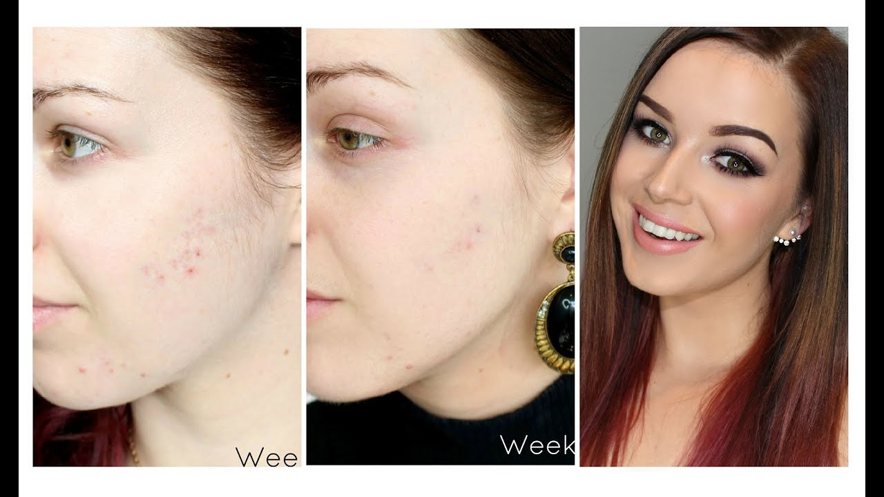 My Acne Scarring - treating them with Microdermabrasion - YouTube