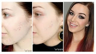 My Acne Scarring - treating them with Microdermabrasion