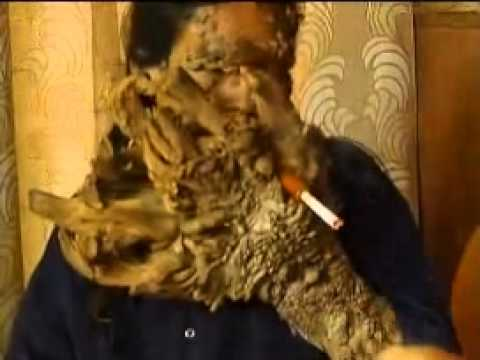LONG TERM EFFECTS OF MEPHEDRONE!!! SHOCKING!!!