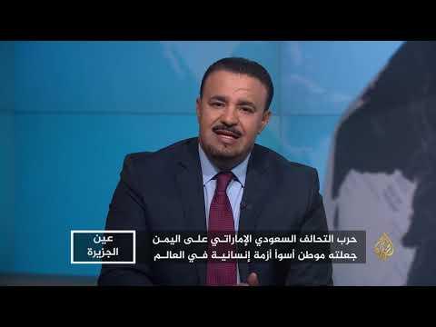 عين الجزيرة- الجوع يهدد حياة ملايين اليمنيين  - نشر قبل 3 ساعة