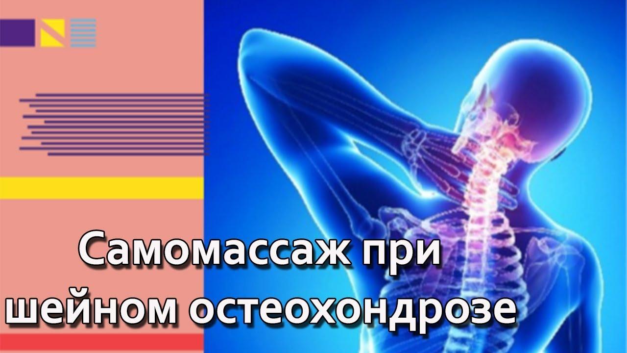 Шейный остеохондроз.Как помочь себе при шейном остеохондрозе? Самомассаж при шейном остеохондрозе