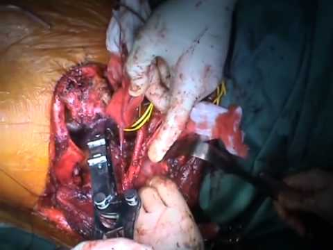 The Anterior Trans cervical Approach to Remove a Desmoid Tumor of the Thoracic Inlet