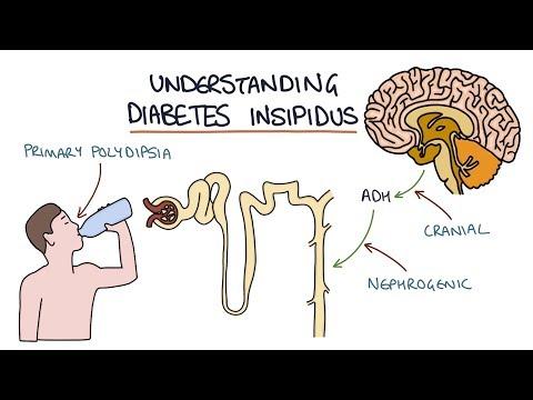 understanding-diabetes-insipidus