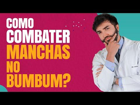 Como Combater As Manchas No Bumbum - Dr Lucas Fustinoni