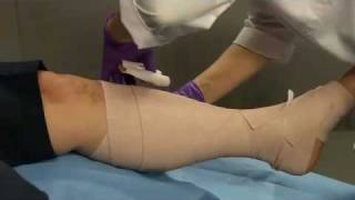 Venous Leg Ulcer solutions for highly contoured legs | 3M Critical & Chronic Care Solutions