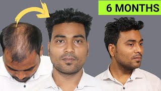Case study with Awesome Hair Transplant Result   6 months hair transplant result   High density
