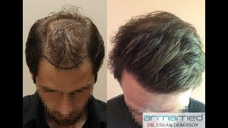 Dr.Erkan Demirsoy 3188 Grafts Fue Before After Photos