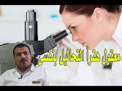 اسهل طريقة لقراءة تحليلك الطبى بنفسك ...مدهش