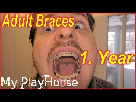 Adult Braces - 1. Year update,,½ a Year to go! - 294