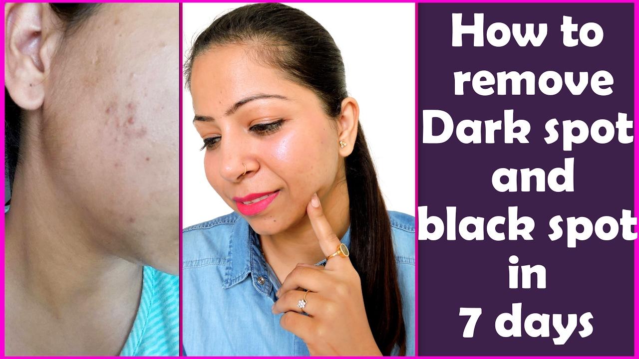 remove dark spots under chin