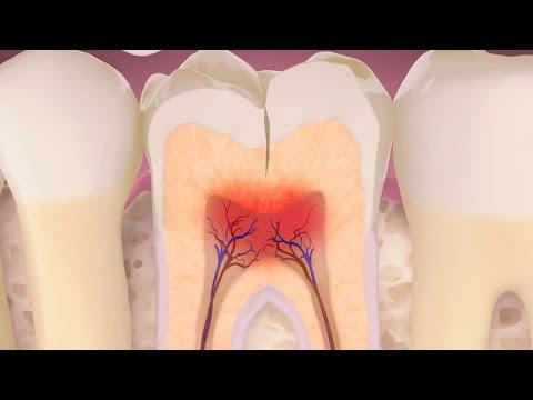 Resultado de imagen de diente fisurado