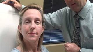 Botox Gilbert AZ Facial Muscles treated with botox