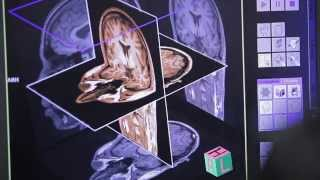 Master en neurosciences - Présentation (anglais)