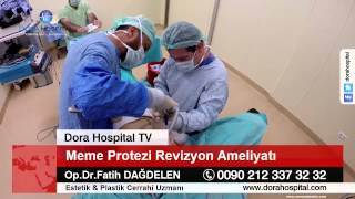 Meme Protezi Revizyon Ameliyatı Bölüm 2 Op.Dr.Fatih Dağdelen