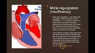 Cardiac Valve Issues Online lecture