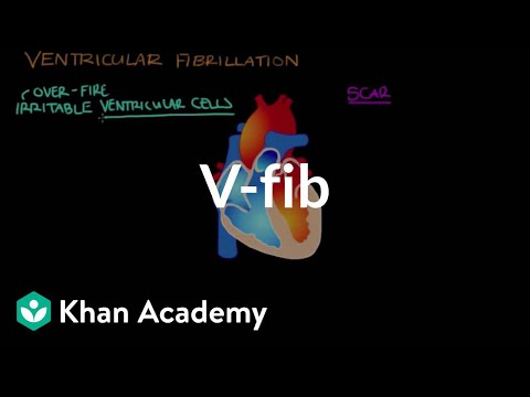 What is ventricle fibrillation (Vfib)? | Circulatory System and Disease | NCLEX-RN | Khan Academy