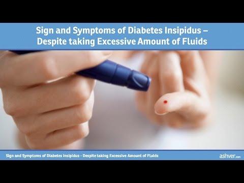Sign and Symptoms of Diabetes Insipidus - Despite taking Excessive Amount of Fluids