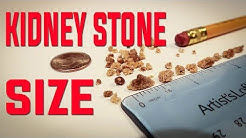 kidney stone size you can pass at home