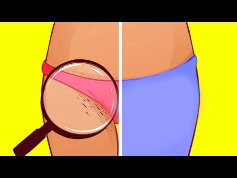 Вопрос: Как женщине избавиться от волос в области подмышек?