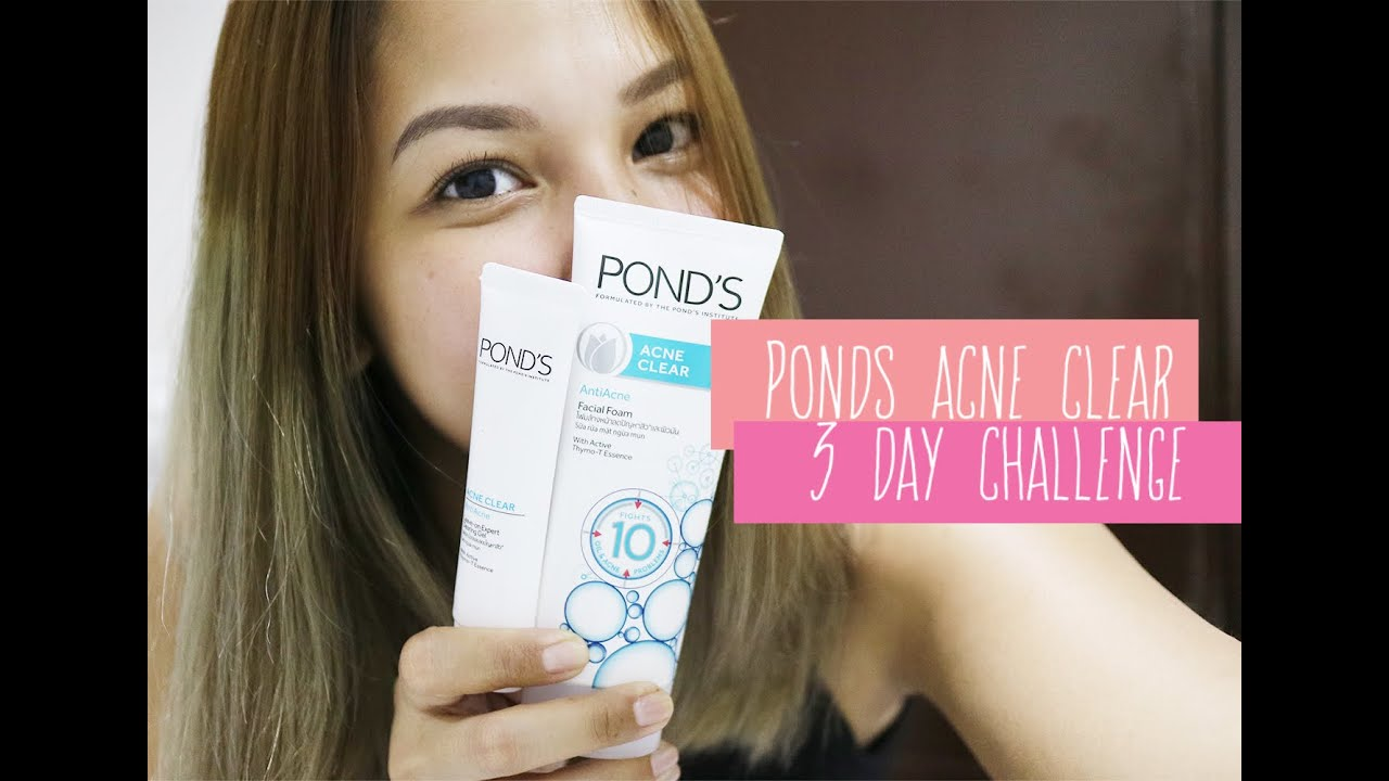My Ponds 3 Day Acne Clear Challenge Youtube Men Solution Gel 20 Gr