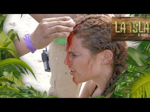 ¡Delia sufre terrible accidente!