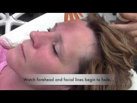 Derma Love Beauty - Cryoskin Ice Facial - Version 2 - YouTube