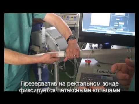 HIFU-терапия рака простаты на Sonablate-500