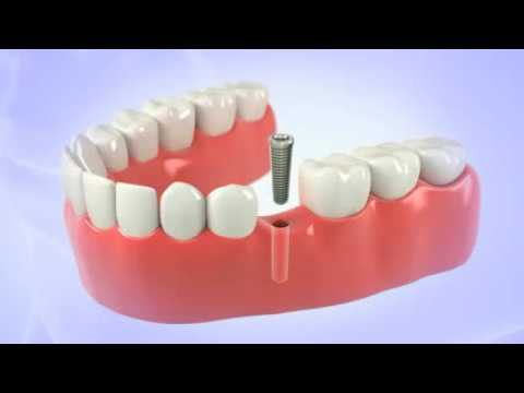 Dental Implant - Florida Institute for Periodontics & Dental Implants - West Palm Beach, FL