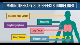 Immunotherapy Side Effects Guidelines