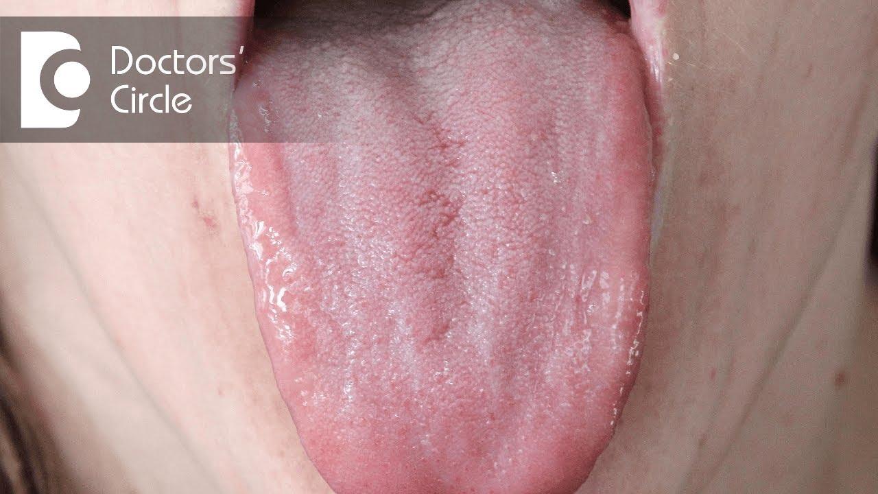 Erythroplakia tongue