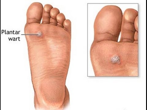 How to Get Rid of a Plantar Wart - Treatment for Plantar War