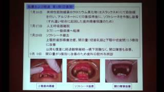 第11回 桐生地区口腔ケア研究会 http://oralcare.kiryu.jp/ 2015.3.7 桐...