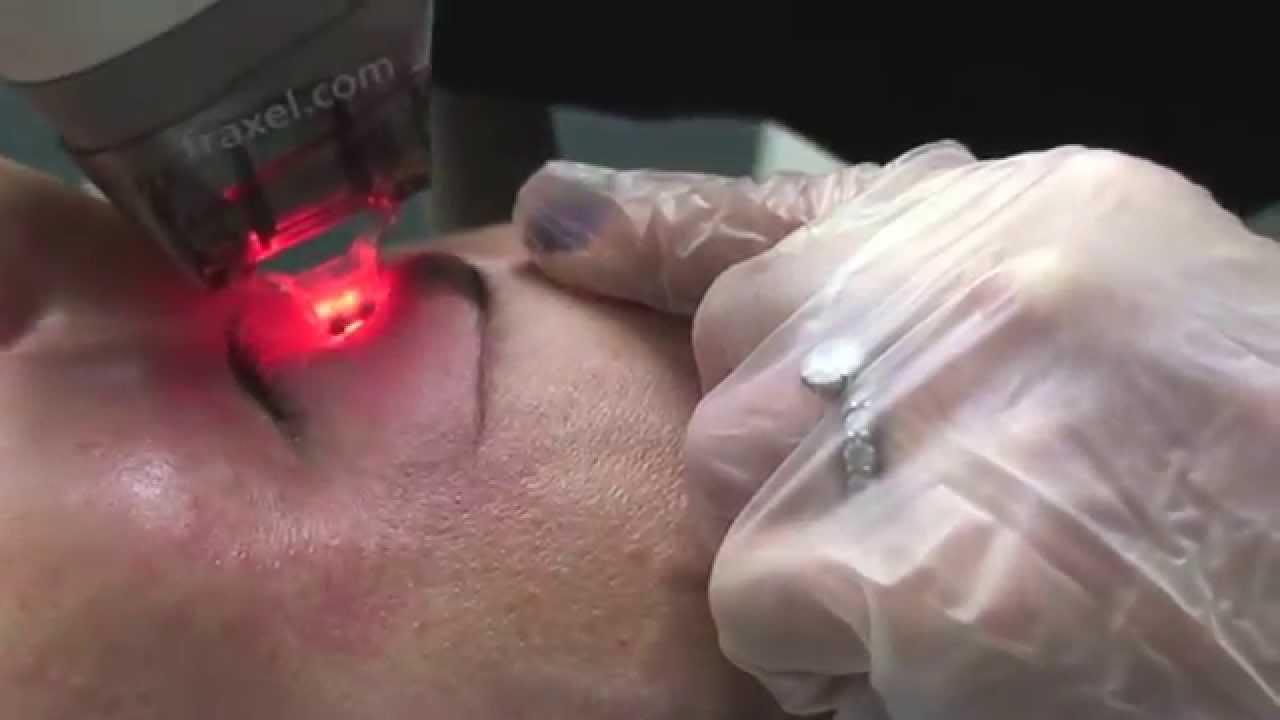 Fraxel Laser for Skin Around Eyes