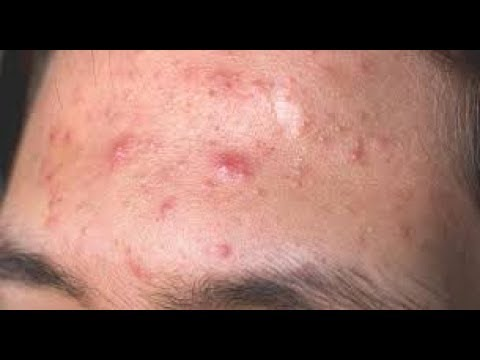 How To Remove Pimples Fast At Home Home Reme For Pimple