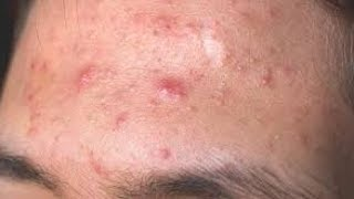 How to remove pimples fast at home/Home remedies for pimple