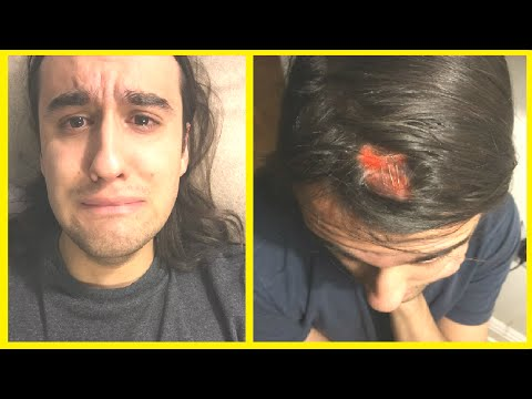 I CRACKED MY HEAD OPEN | STORYTIME