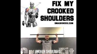 Fix Your Crooked Shoulders Fast | SmashweRx | Trevor Bachmeyer