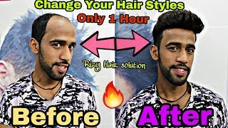 HAIR Loss, baldness, hair wigs hair toupees system for man in Delhi [RIZY] 9582581323