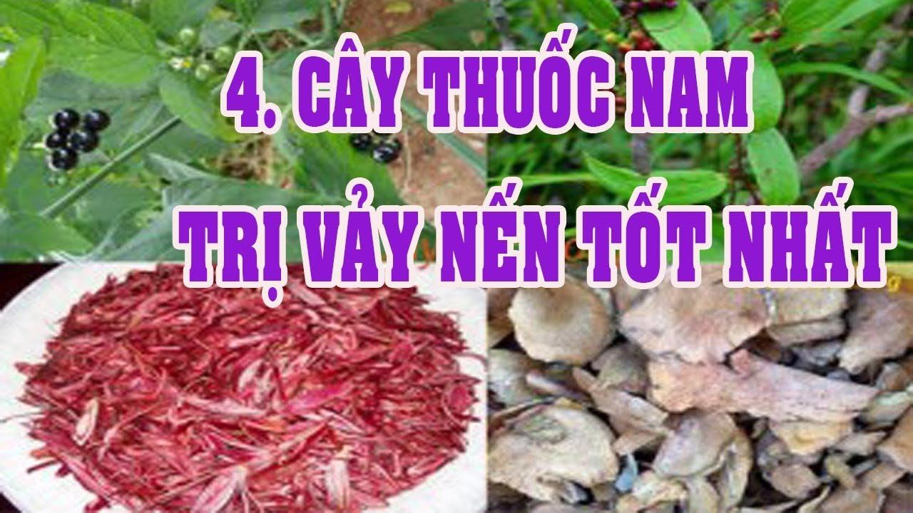 Điều Trị Vảy Nến Bằng 4 cây thuốc nam nổi tiếng ( Thổ phục linh, Lu Lu..)