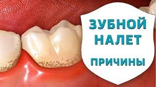 чем опасны анаэробы? Причины возникновения зубного налёта и зубного камня  Дентал ТВ
