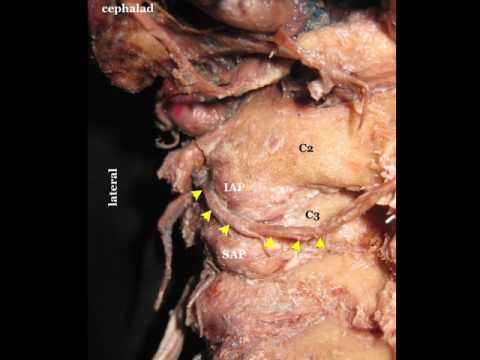 Third Occipital Nerve & Cervical Medial Branch Block