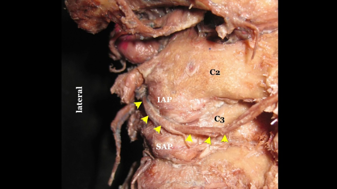 Third Occipital Nerve & Cervical Medial Branch Block - YouTube