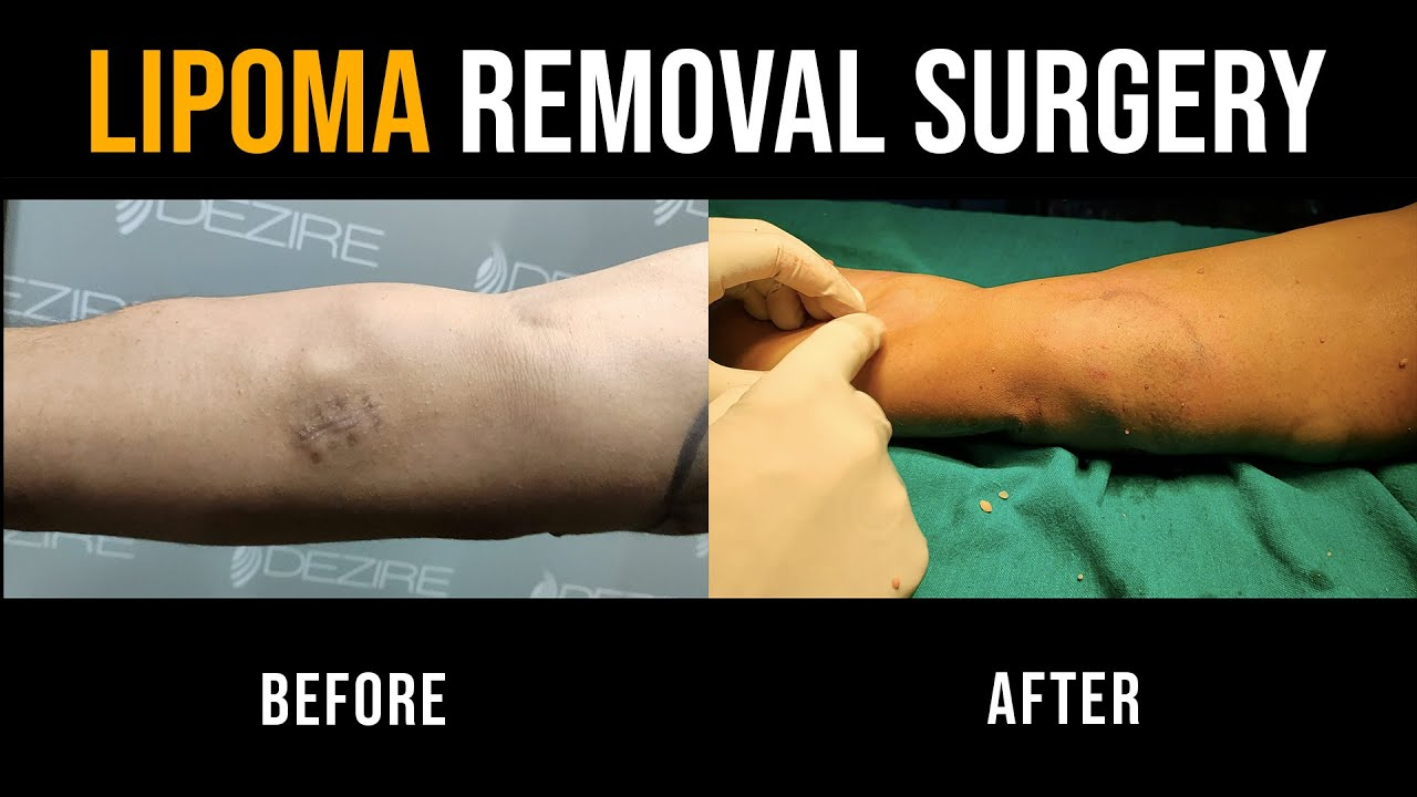 Lipoma Surgery Removal Video | Multiple Lipoma Removal Video