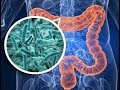 Recent Advances on the Gut Microbiome and Cancer Therapy - T. O. Keku - 20180822